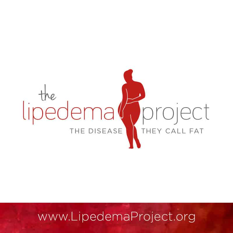 The Lipedema Project for Lipedema / Lipoedema / Lipödem
