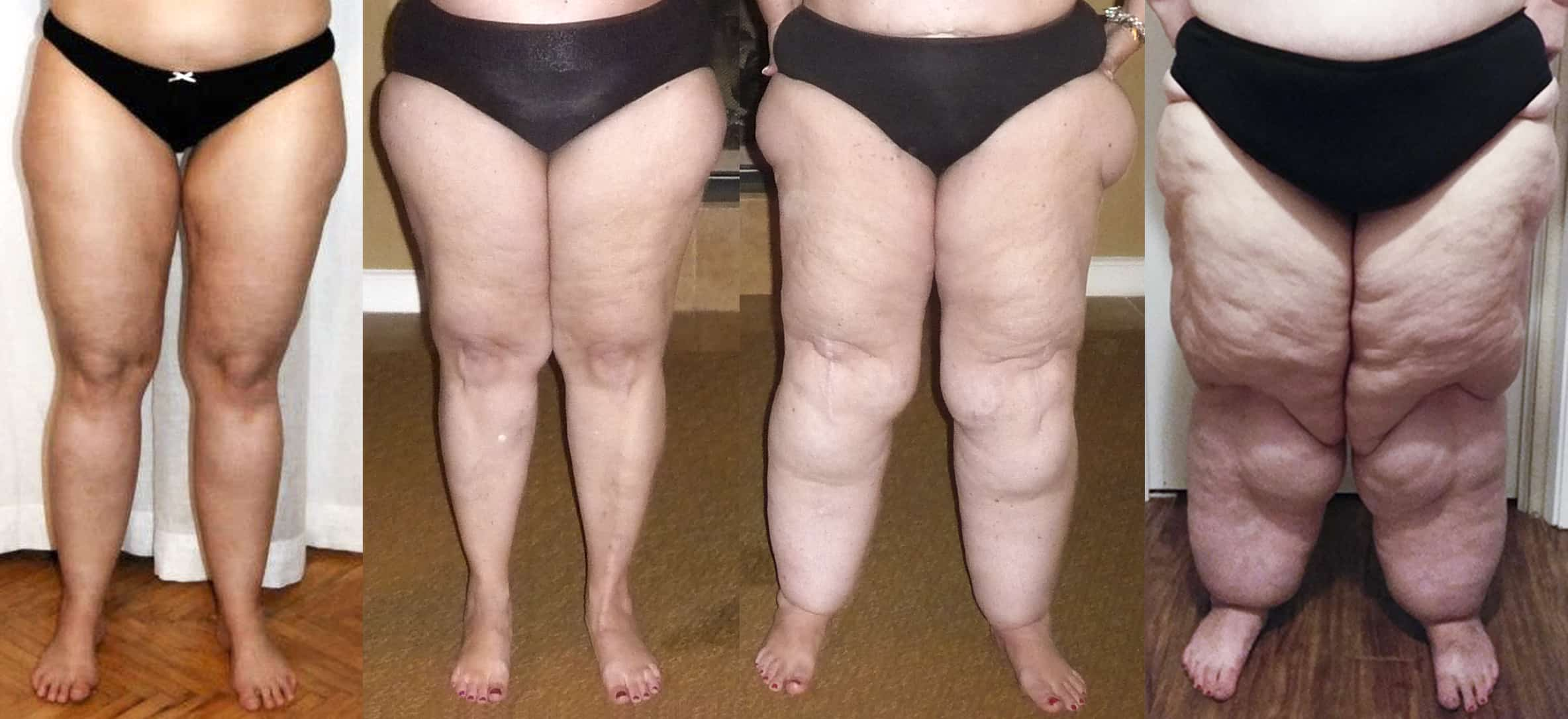 4stages lipedema legs